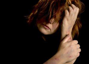 autolesão não suicida